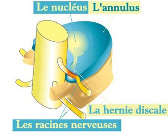 illustration of the nucleus coming into contact with the nerve roots
